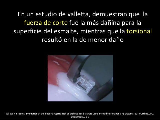 Valleta R, Prisco D. Evaluation of the debonding strength of orthodontic brackets using three different bonding systems. E...