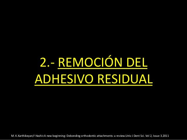 2.- REMOCIÓN DELADHESIVO RESIDUALM. K.Karthikeyan,Y Hashir.A new beginning: Debonding orthodontic attachments: a review.Un...