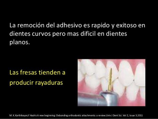 La remoción del adhesivo es rapido y exitoso endientes curvos pero mas dificil en dientesplanos.Las fresas tienden aproduc...