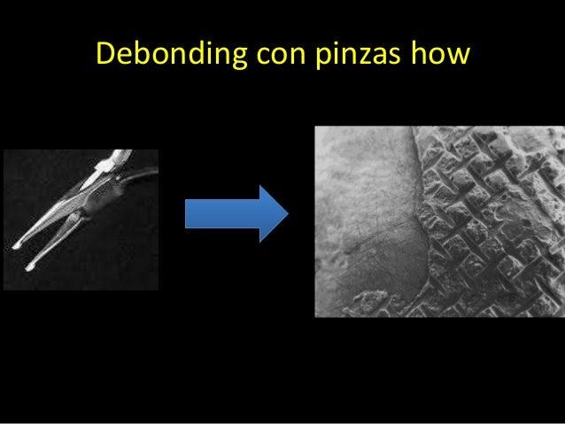 Debonding con pinzas de corte deligaduraK. Zarrinnina, N.M Eid.The effect of different debonding techniques on the enamel ...