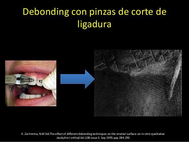 Debonding con pinzas retira bracketsK. Zarrinnia, N.M Eid.The effect of different debonding techniques on the enamel surfa...