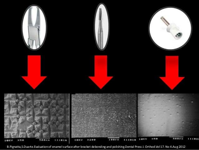 En este estudio demostráron laconsistencia de las pinzas retirabrackets para separar la interfasebracket-resina.
