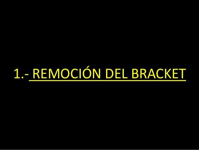 1.- REMOCIÓN DEL BRACKET