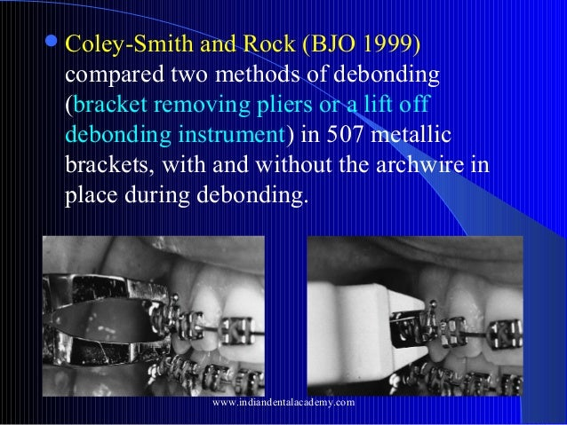  Coley-Smith  and Rock (BJO 1999) compared two methods of debonding (bracket removing pliers or a lift off debonding inst...