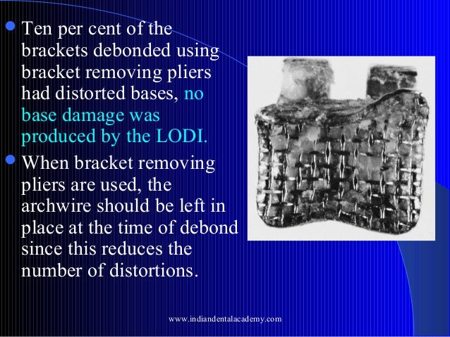  Ten  per cent of the brackets debonded using bracket removing pliers had distorted bases, no base damage was produced by...