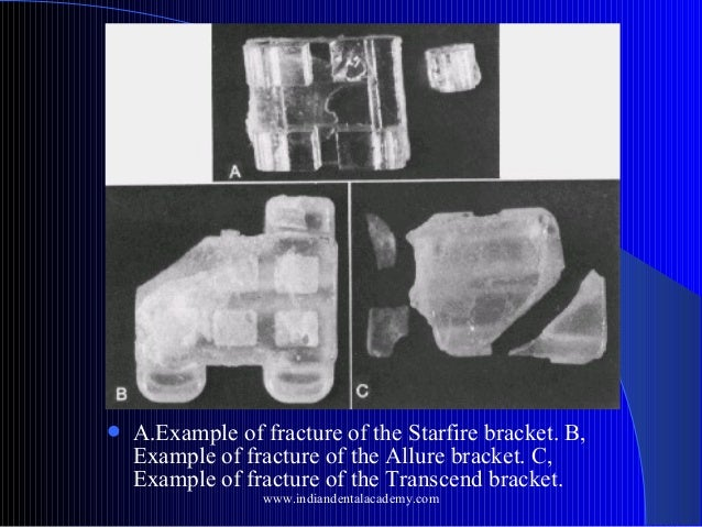   A.Example of fracture of the Starfire bracket. B, Example of fracture of the Allure bracket. C, Example of fracture of ...
