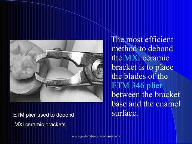 ETM plier used to debond  The most efficient method to debond the MXi ceramic bracket is to place the blades of the ETM 34...