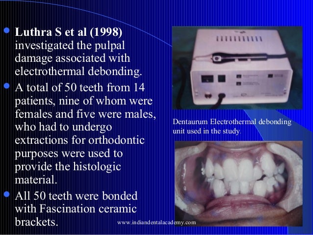 Luthra  S et al (1998) investigated the pulpal damage associated with electrothermal debonding.  A total of 50 teeth fr...