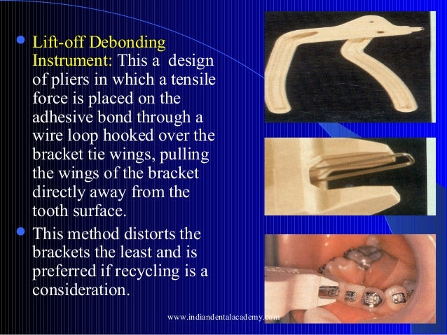  Lift-off  Debonding Instrument: This a design of pliers in which a tensile force is placed on the adhesive bond through ...