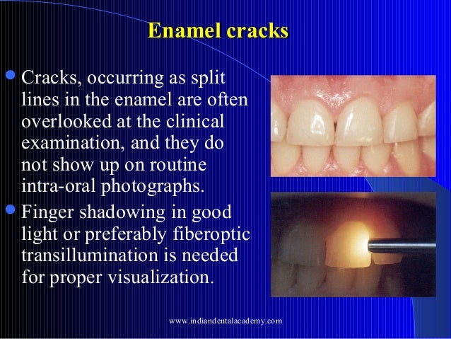 Enamel cracks  Cracks,  occurring as split lines in the enamel are often overlooked at the clinical examination, and they...