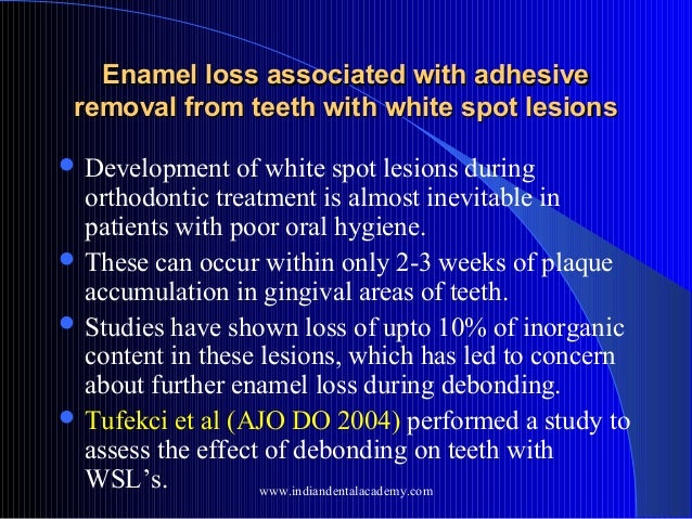 Enamel loss associated with adhesive removal from teeth with white spot lesions  Development  of white spot lesions durin...