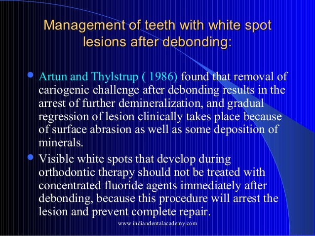 Management of teeth with white spot lesions after debonding:  Artun  and Thylstrup ( 1986) found that removal of cariogen...