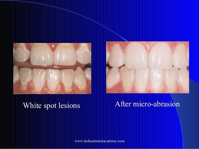 White spot lesions  After micro-abrasion  www.indiandentalacademy.com