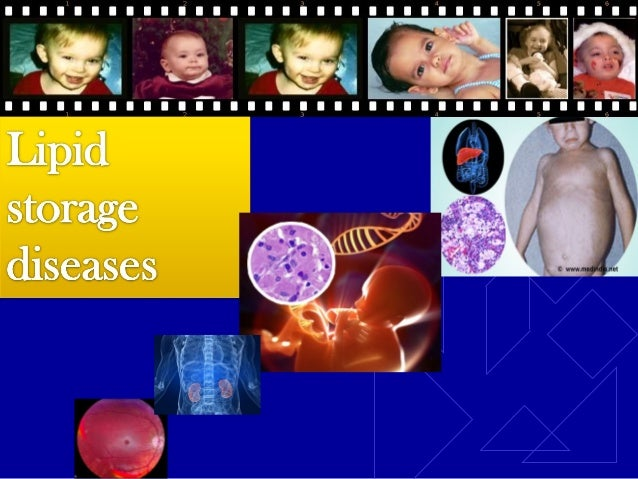 Introduction Lipid storage diseases (Lipidoses) are a  group of diseases that arise from a deficiency  of a specific lyso...