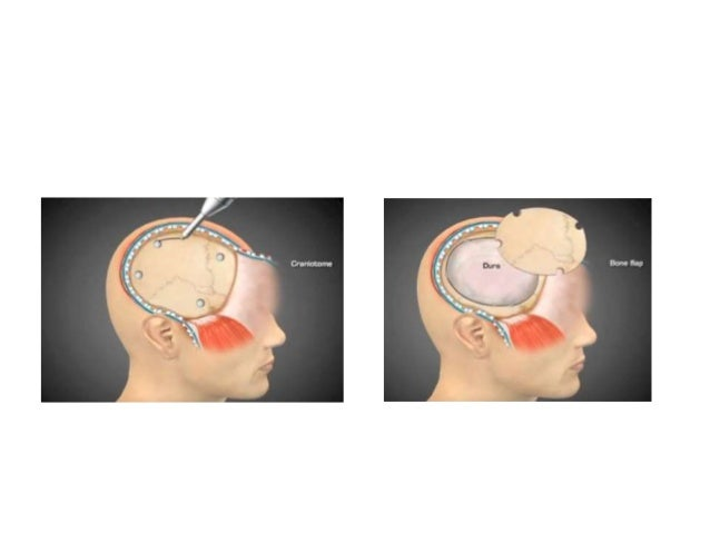 Decompressive craniectomy in Traumatic Brain Injury