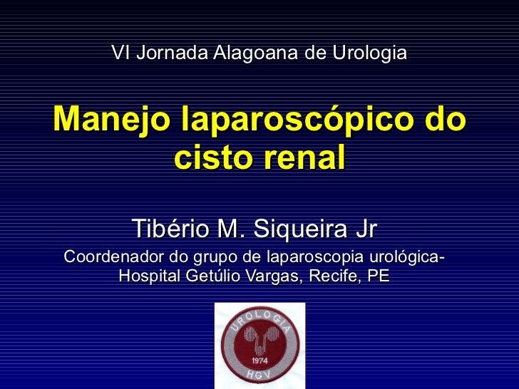 VI Jornada Alagoana de Urologia Manejo laparoscópico do cisto renal Tibério M. Siqueira Jr Coordenador do grupo de laparos...