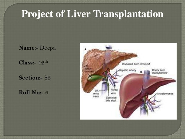 Project of Liver Transplantation Name:- Deepa Class:- 12th  Section:- S6 Roll No:- 6