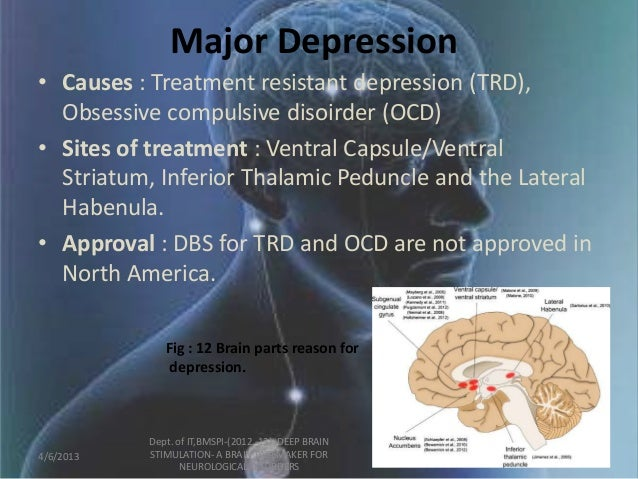Dbs for depression