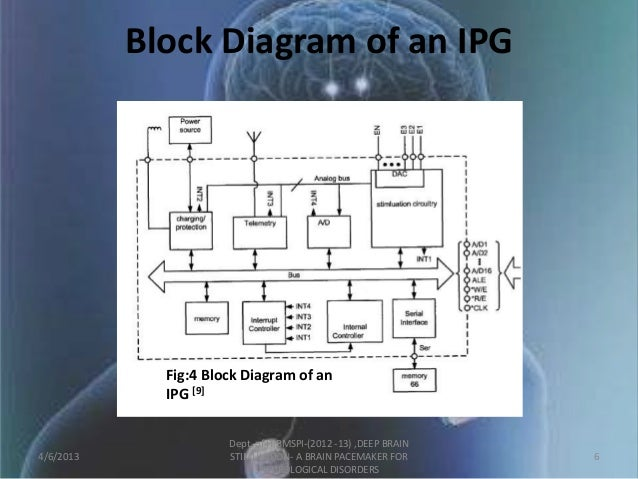 Deep brain stimulation brain pacemaker for neurological disorders 5 6 block diagram ccuart Gallery