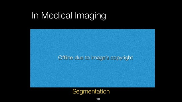 28 In Medical Imaging Segmentation Offline due to image's copyright