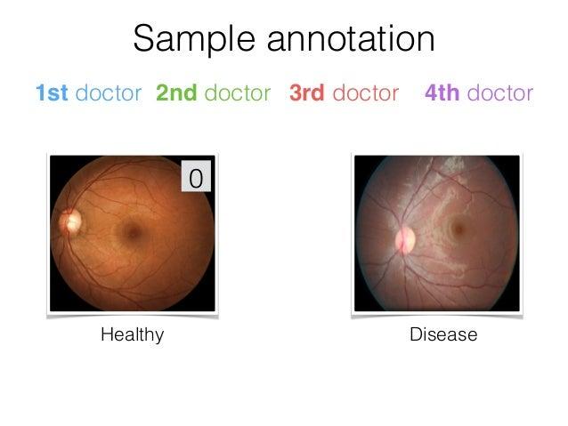 Algorithm vs Ophthalmologists