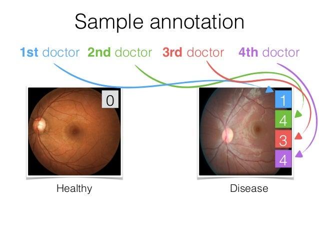 Algorithm vs Ophthalmologists Sensitivity,% 100 - Specificity, % 0100 0 100 AUC of 97.4%