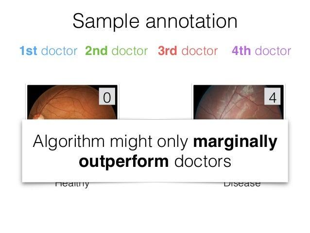 Algorithm vs Ophthalmologists Sensitivity,% 100 - Specificity, % 0100 0 100 AUC of 97.4% Points on ROC are performances of ...
