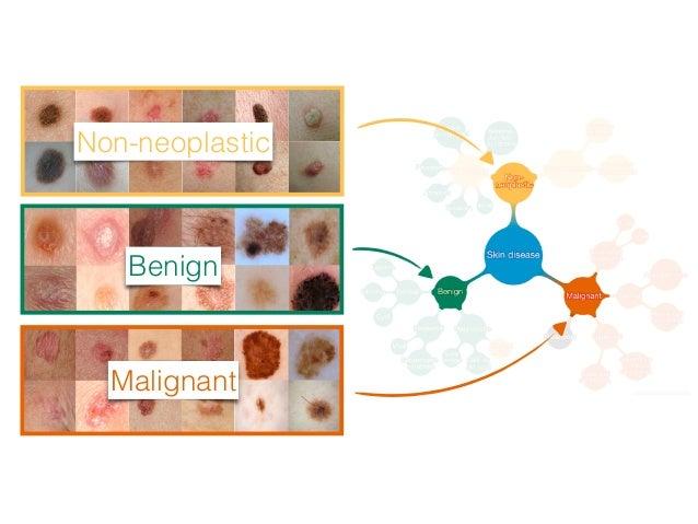 Algorithm vs Dermatologists Specificity,% Sensitivity, % AUC of 96% Carcinoma: 135 images Dermatologists (25)