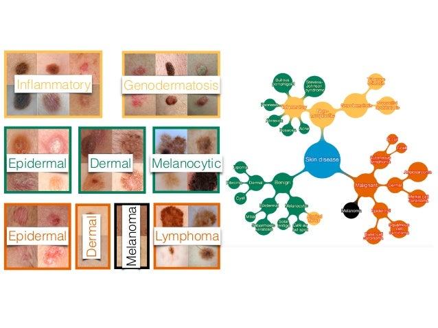 Specificity,% Sensitivity, % AUC of 96% Carcinoma: 135 images Dermatologists (25) Algorithm vs Dermatologists