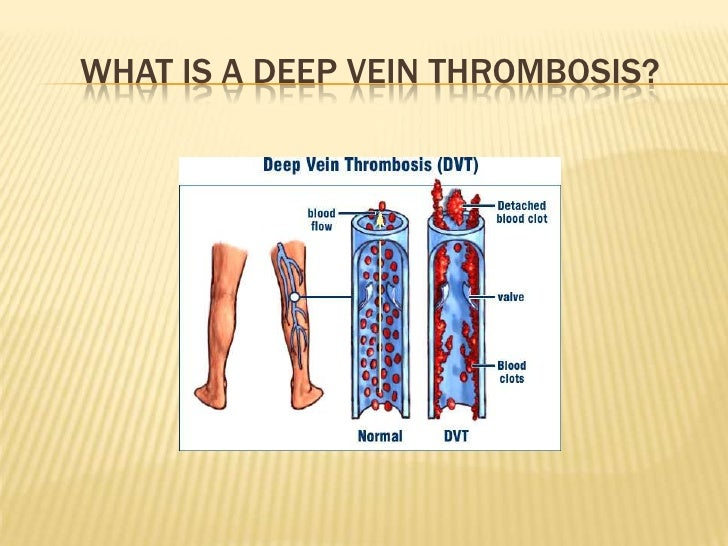 cephalic vein thrombosis prognosis – applecool, Cephalic Vein