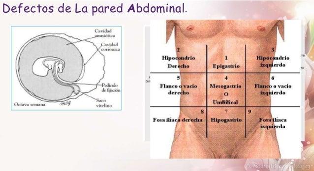 Defectos de la pared abdominal Slide 2