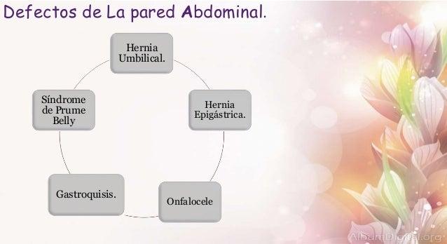 Defectos de la pared abdominal Slide 3