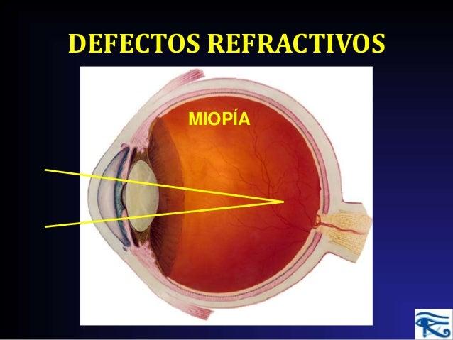 6245b5c4f8 DEFECTOS REFRACTIVOS MIOPÍA ...