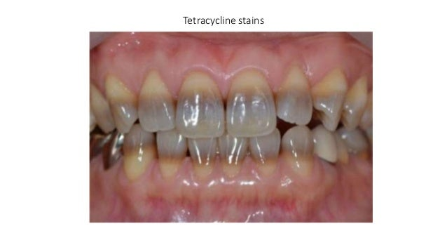defects of tooth structure