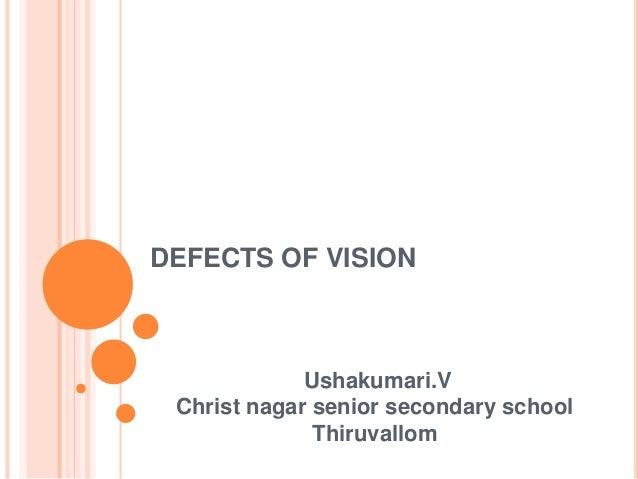 DEFECTS OF VISION Ushakumari.V Christ nagar senior secondary school Thiruvallom