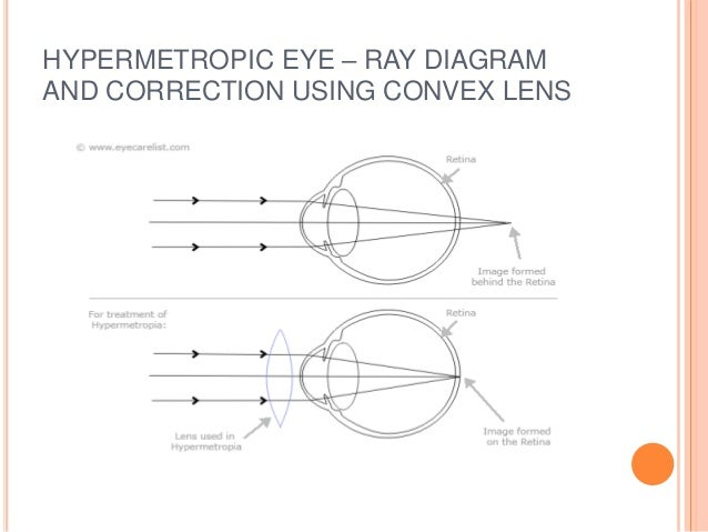 Ray diagrams human eye basic guide wiring diagram defects of vision rh slideshare net eye lens ray diagram eye lens ray diagram ccuart Choice Image