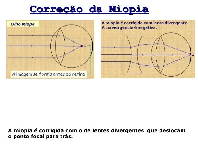 96f3598417 Correção da MiopiaCorreção da Miopia A miopia é corrigida com o de lentes  divergentes que deslocam o ponto focal para trás.