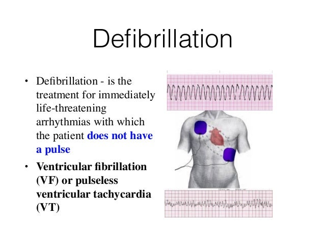 How to perform cardioversion and defibrillation youtube.
