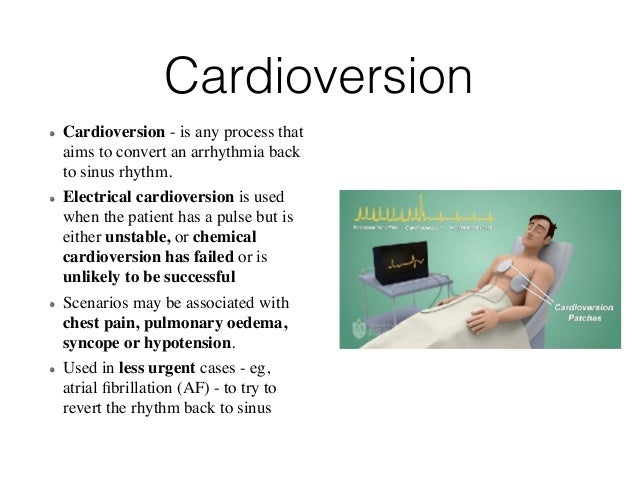 Defibrillation and cardioversion Slide 3