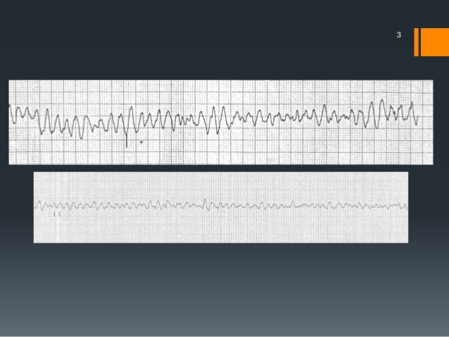 Defibrillation, cardioversion and pacing Slide 3