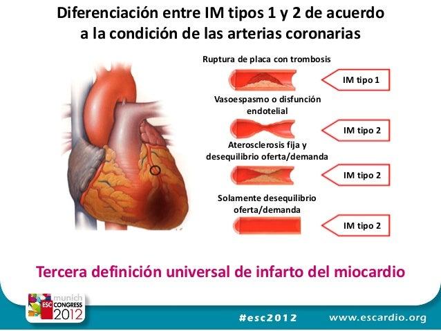 Tratamiento de un infarto de miocardio en el momento agudo