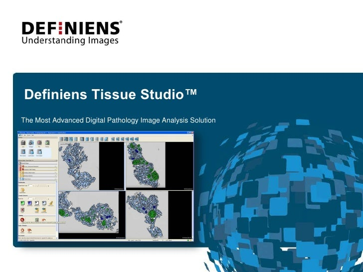 Definiens Tissue Studio™<br />The Most Advanced Digital Pathology Image Analysis Solution <br />