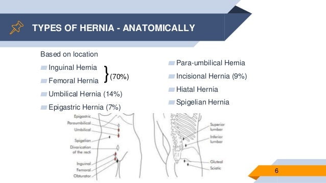 Definition and types of hernia repair