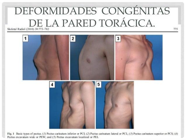 deformaciones de la columna vertebral yahoo dating