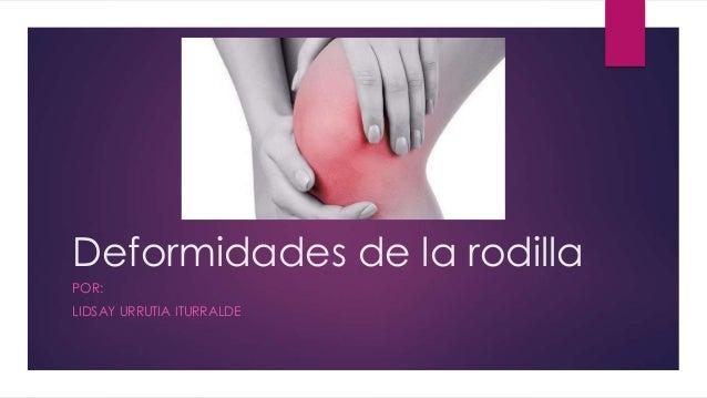 Deformidades de la rodilla POR: LIDSAY URRUTIA ITURRALDE