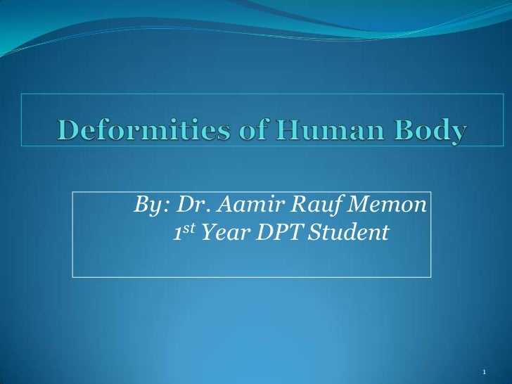 Deformities of Human Body<br />By: Dr. Aamir RaufMemon<br />           1st Year DPT Student <br />1<br />