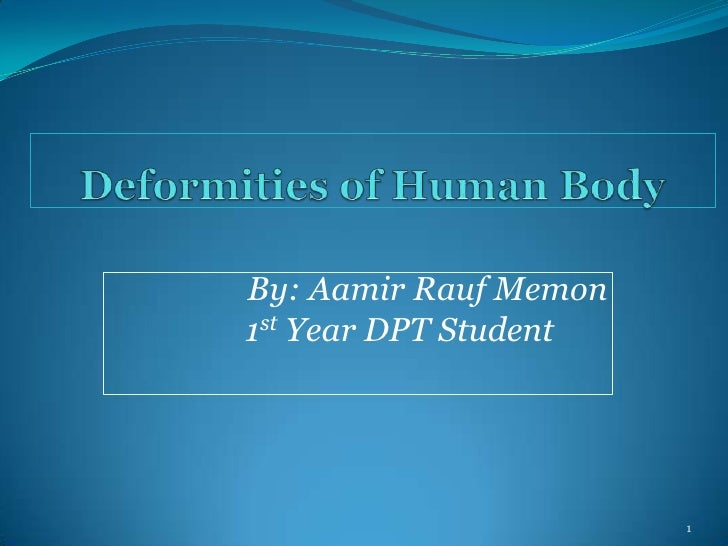 By: Aamir Rauf Memon1st Year DPT Student                       1