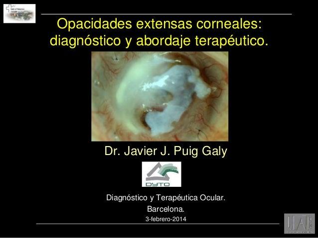 Opacidades extensas corneales: diagnóstico y abordaje terapéutico.  Dr. Javier J. Puig Galy  Diagnóstico y Terapéutica Ocu...