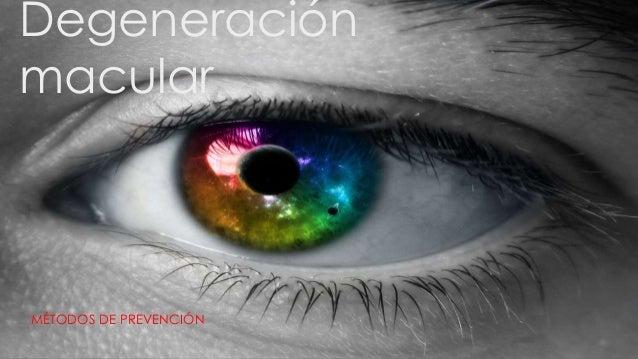 Degeneración macular MÉTODOS DE PREVENCIÓN