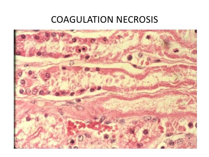 Degeneration, necrosis, and pathological pigmentation